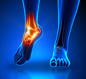 Foot Pain Care Fraser MI - Premier Foot & Ankle - ankle_pain