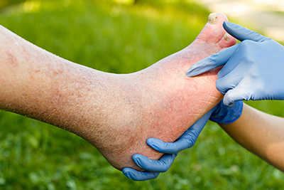 Foot Pain Treatment Clinton Township MI - Premier Foot & Ankle - ingrown_toenails